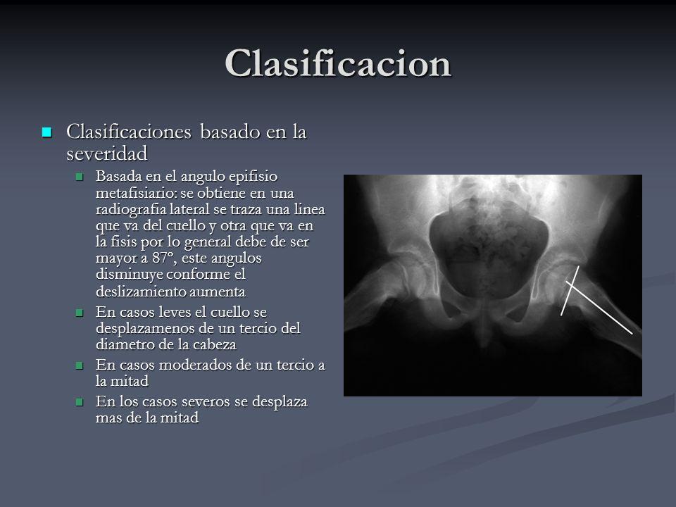 Clasificacion Clasificaciones basado en la severidad Clasificaciones basado en la severidad Basada en el angulo epifisio metafisiario: se obtiene en u