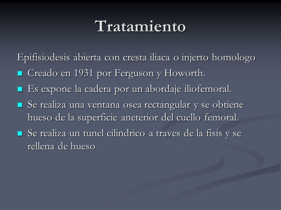 Tratamiento Epifisiodesis abierta con cresta iliaca o injerto homologo Creado en 1931 por Ferguson y Howorth. Creado en 1931 por Ferguson y Howorth. E