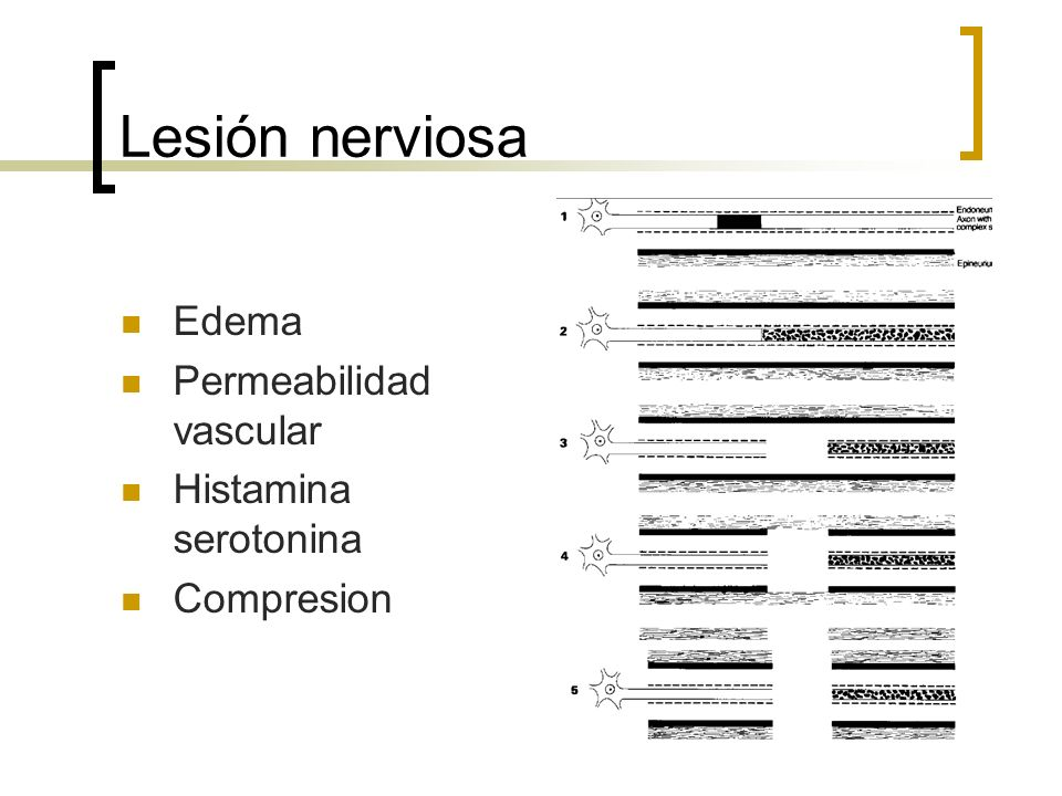 Lesión nerviosa Edema Permeabilidad vascular Histamina serotonina Compresion
