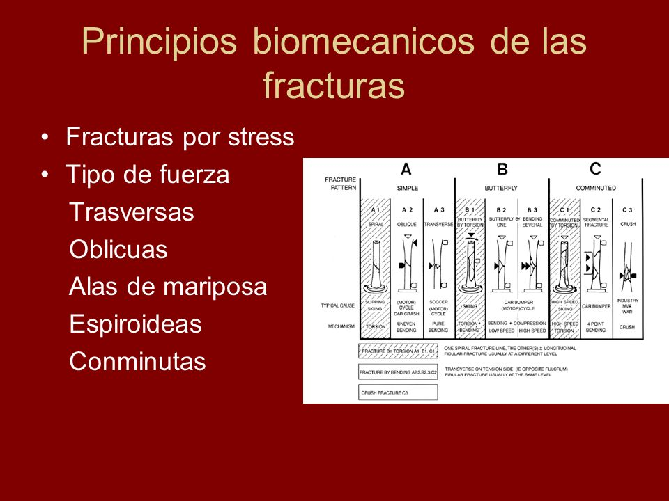 Principios biomecanicos de las fracturas Fracturas por stress Tipo de fuerza Trasversas Oblicuas Alas de mariposa Espiroideas Conminutas