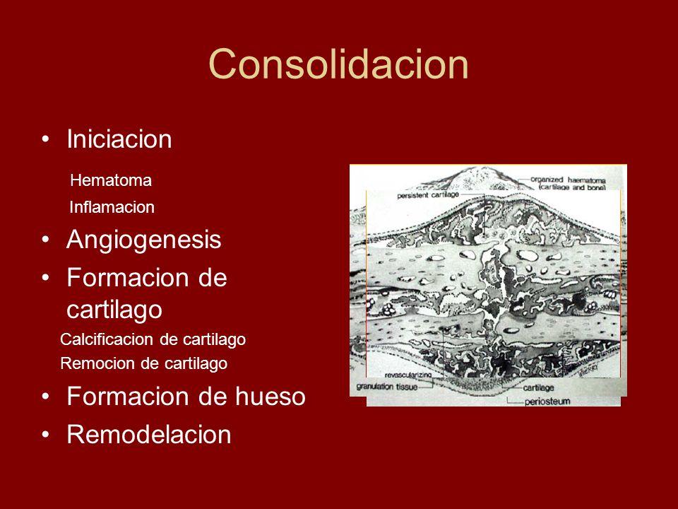 Consolidacion Iniciacion Hematoma Inflamacion Angiogenesis Formacion de cartilago Calcificacion de cartilago Remocion de cartilago Formacion de hueso