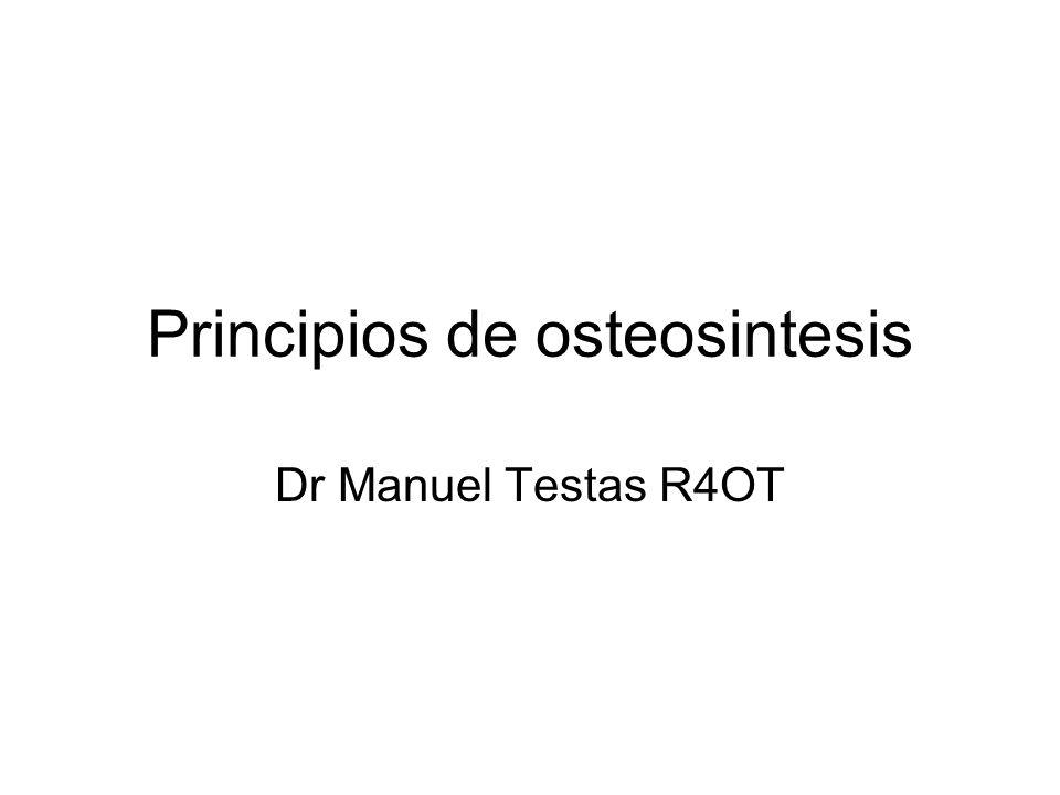 Principios de osteosintesis Dr Manuel Testas R4OT