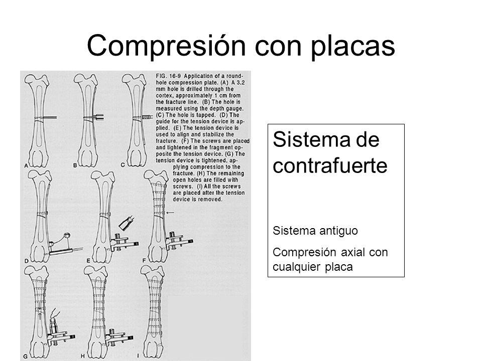 Compresión con placas Sistema de contrafuerte Sistema antiguo Compresión axial con cualquier placa