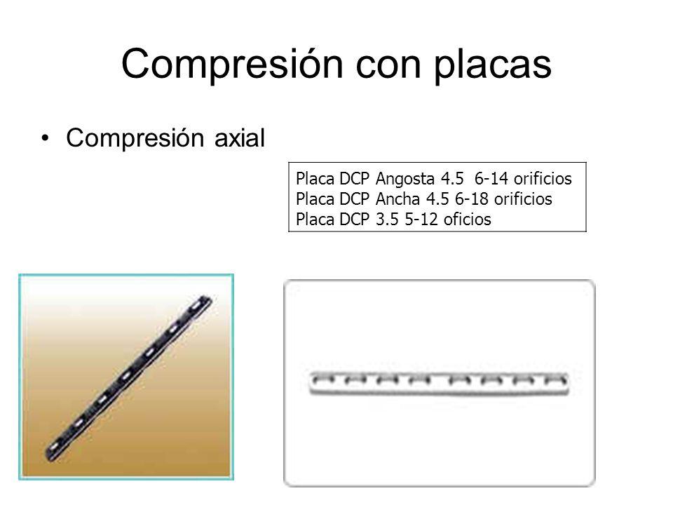 Compresión con placas Compresión axial Placa DCP Angosta 4.5 6-14 orificios Placa DCP Ancha 4.5 6-18 orificios Placa DCP 3.5 5-12 oficios