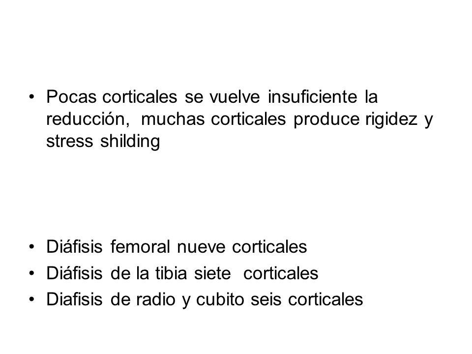 Pocas corticales se vuelve insuficiente la reducción, muchas corticales produce rigidez y stress shilding Diáfisis femoral nueve corticales Diáfisis d