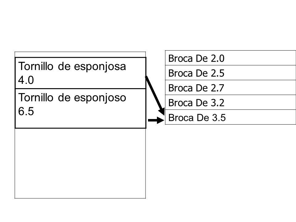Tornillo de esponjosa 4.0 Tornillo de esponjoso 6.5 Broca De 2.0 Broca De 2.5 Broca De 2.7 Broca De 3.2 Broca De 3.5