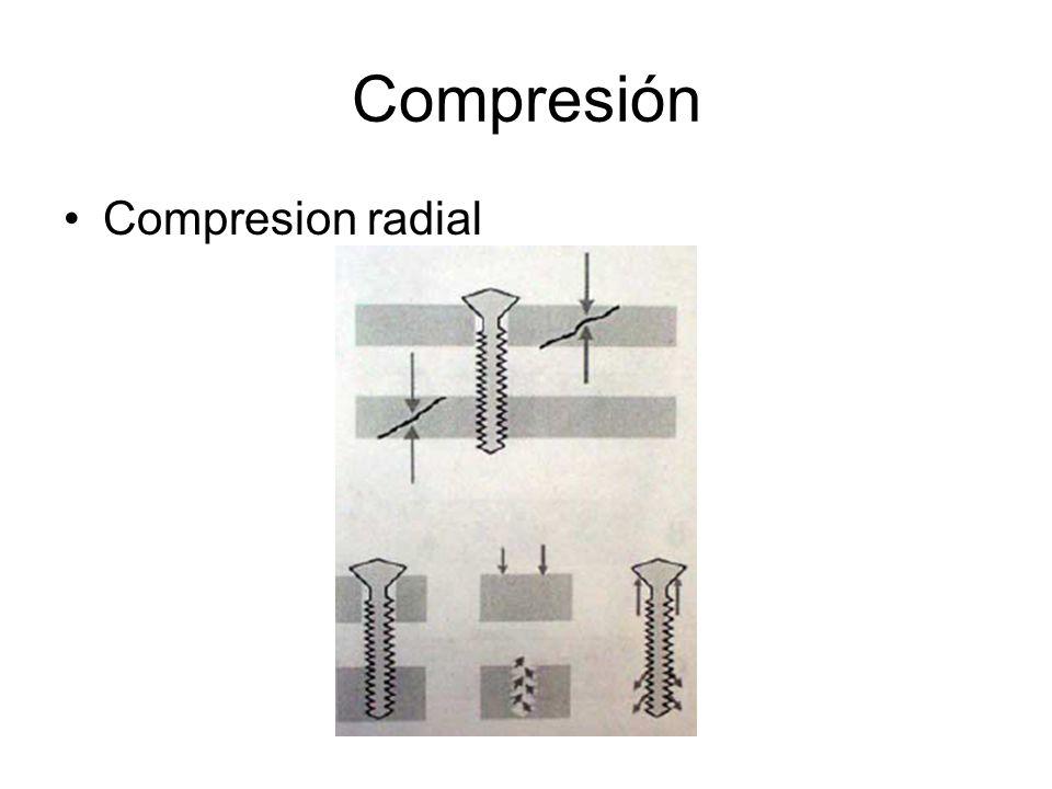 Compresión Compresion radial