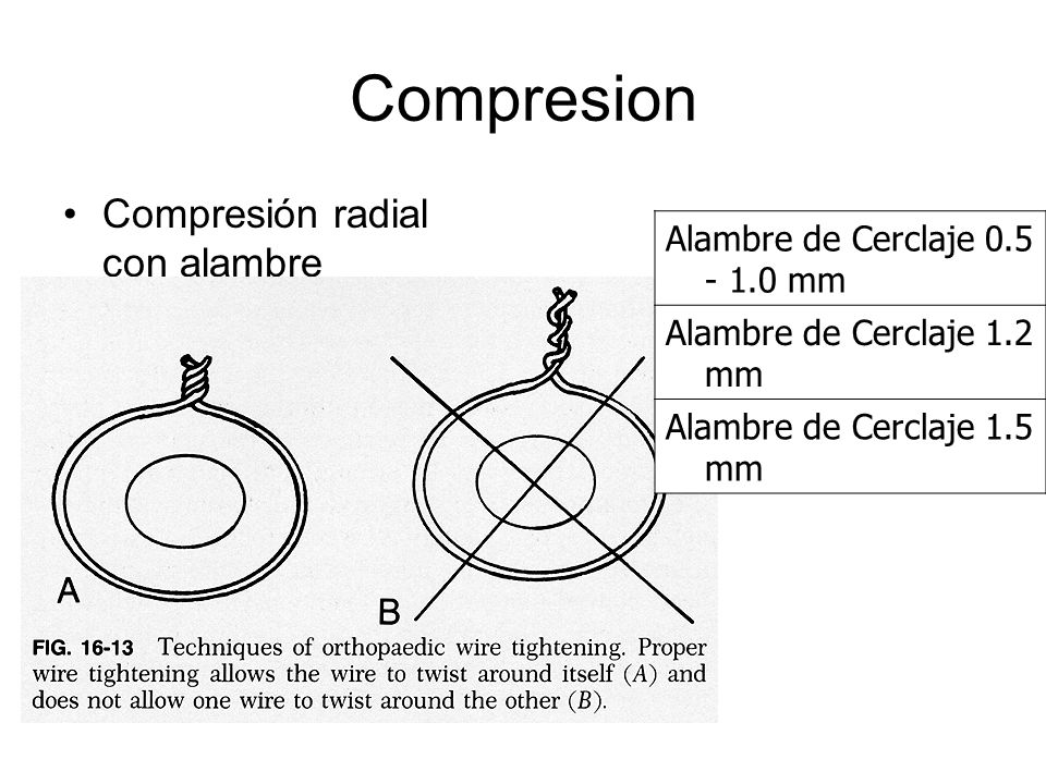 Compresión radial con alambre Alambre de Cerclaje 0.5 - 1.0 mm Alambre de Cerclaje 1.2 mm Alambre de Cerclaje 1.5 mm