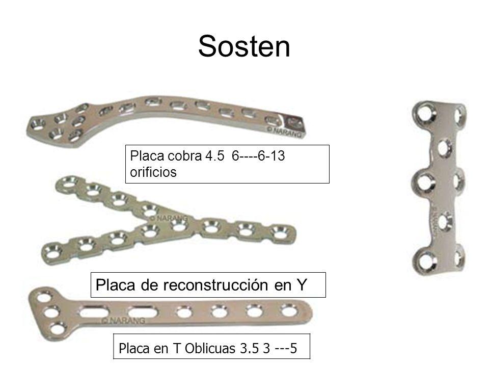 Sosten Placa en T Oblicuas 3.5 3 ---5 Placa de reconstrucción en Y Placa cobra 4.5 6----6-13 orificios