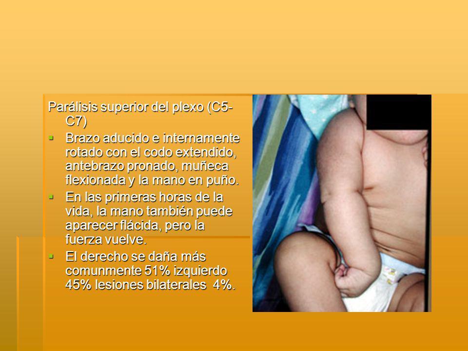 Parálisis superior del plexo (C5- C7) Brazo aducido e internamente rotado con el codo extendido, antebrazo pronado, muñeca flexionada y la mano en puño.