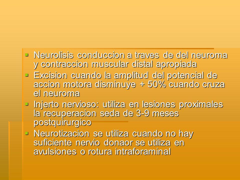 Neurolisis conduccion a traves de del neuroma y contraccion muscular distal apropiada Neurolisis conduccion a traves de del neuroma y contraccion muscular distal apropiada Excision cuando la amplitud del potencial de accion motora disminuye + 50% cuando cruza el neuroma Excision cuando la amplitud del potencial de accion motora disminuye + 50% cuando cruza el neuroma Injerto nervioso: utiliza en lesiones proximales la recuperacion seda de 3-9 meses postquirurgico Injerto nervioso: utiliza en lesiones proximales la recuperacion seda de 3-9 meses postquirurgico Neurotizacion se utiliza cuando no hay suficiente nervio donaor se utiliza en avulsiones o rotura intraforaminal Neurotizacion se utiliza cuando no hay suficiente nervio donaor se utiliza en avulsiones o rotura intraforaminal