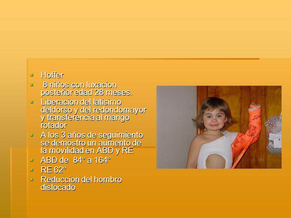 Hoffer Hoffer 8 niños con luxacion posterior edad 28 meses.