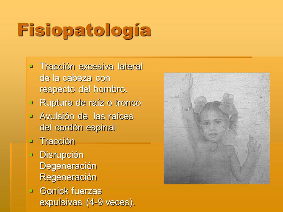 Fisiopatología Tracción excesiva lateral de la cabeza con respecto del hombro.