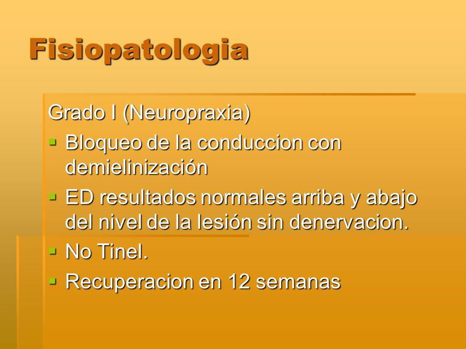 Fisiopatologia Grado I (Neuropraxia) Bloqueo de la conduccion con demielinización Bloqueo de la conduccion con demielinización ED resultados normales arriba y abajo del nivel de la lesión sin denervacion.