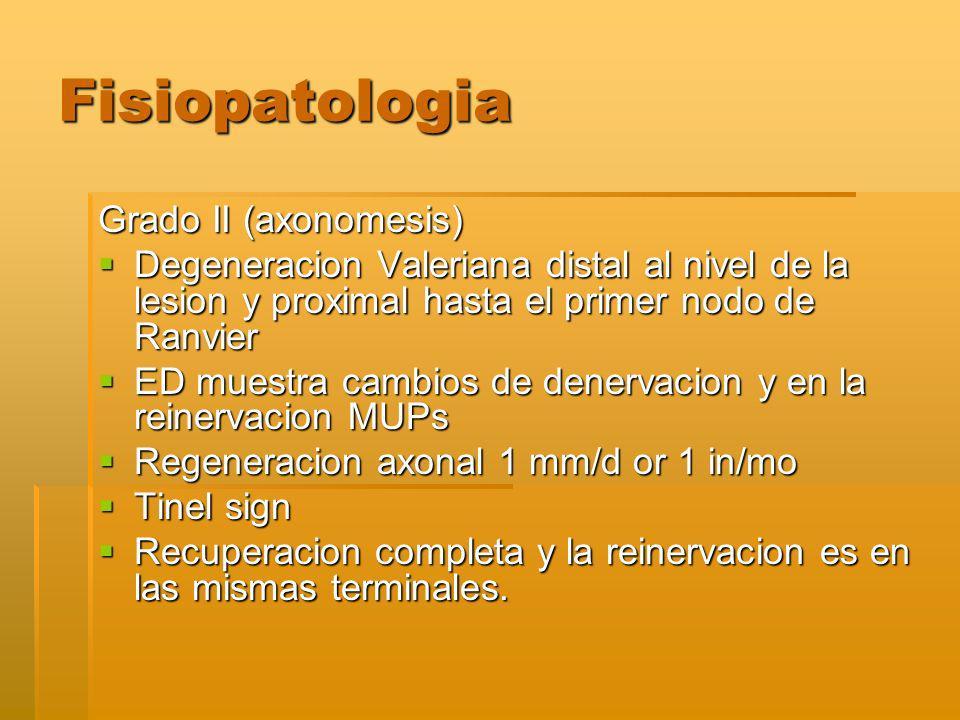 Fisiopatologia Grado II (axonomesis) Degeneracion Valeriana distal al nivel de la lesion y proximal hasta el primer nodo de Ranvier Degeneracion Valeriana distal al nivel de la lesion y proximal hasta el primer nodo de Ranvier ED muestra cambios de denervacion y en la reinervacion MUPs ED muestra cambios de denervacion y en la reinervacion MUPs Regeneracion axonal 1 mm/d or 1 in/mo Regeneracion axonal 1 mm/d or 1 in/mo Tinel sign Tinel sign Recuperacion completa y la reinervacion es en las mismas terminales.