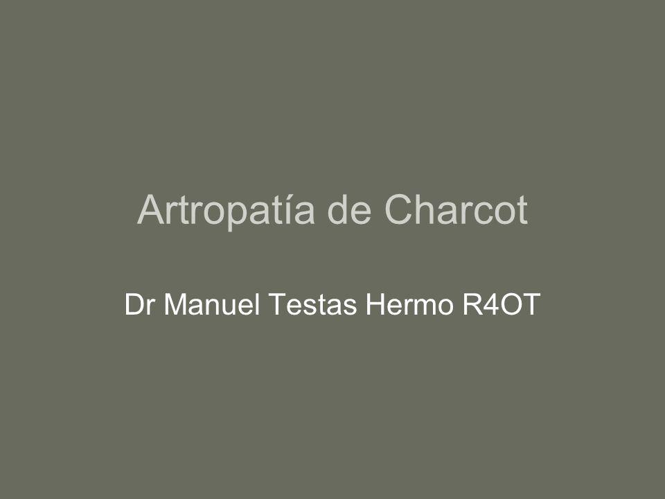 Artropatía de Charcot Dr Manuel Testas Hermo R4OT