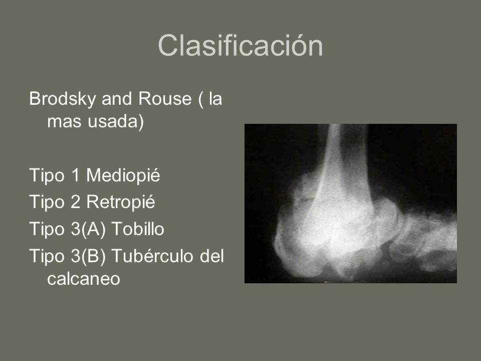Clasificación Brodsky and Rouse ( la mas usada) Tipo 1 Mediopié Tipo 2 Retropié Tipo 3(A) Tobillo Tipo 3(B) Tubérculo del calcaneo