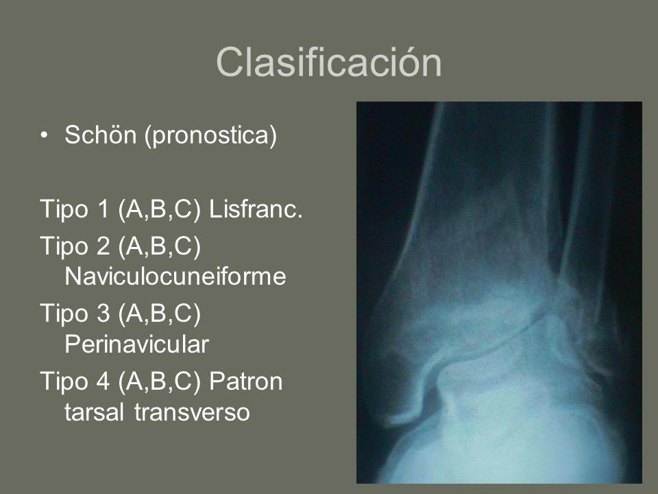 Clasificación Schön (pronostica) Tipo 1 (A,B,C) Lisfranc. Tipo 2 (A,B,C) Naviculocuneiforme Tipo 3 (A,B,C) Perinavicular Tipo 4 (A,B,C) Patron tarsal