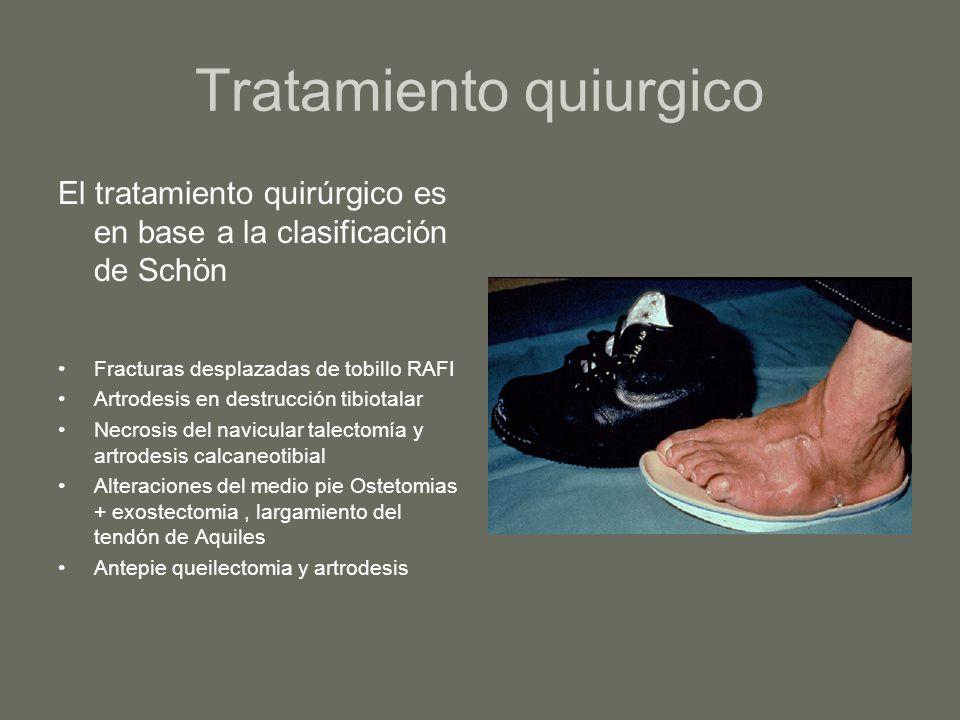 Tratamiento quiurgico El tratamiento quirúrgico es en base a la clasificación de Schön Fracturas desplazadas de tobillo RAFI Artrodesis en destrucción
