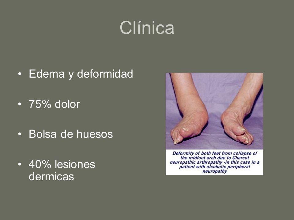 Clínica Edema y deformidad 75% dolor Bolsa de huesos 40% lesiones dermicas