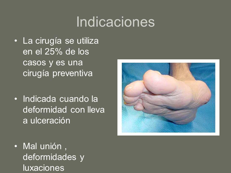 Indicaciones La cirugía se utiliza en el 25% de los casos y es una cirugía preventiva Indicada cuando la deformidad con lleva a ulceración Mal unión,
