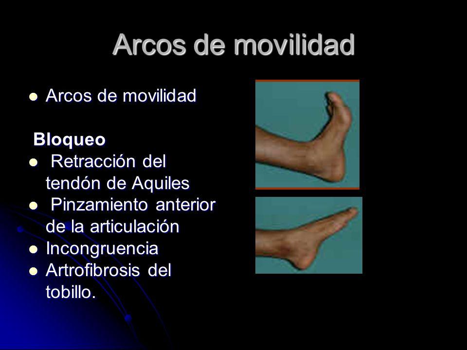 Arcos de movilidad Arcos de movilidad Arcos de movilidad Bloqueo Bloqueo Retracción del tendón de Aquiles Retracción del tendón de Aquiles Pinzamiento