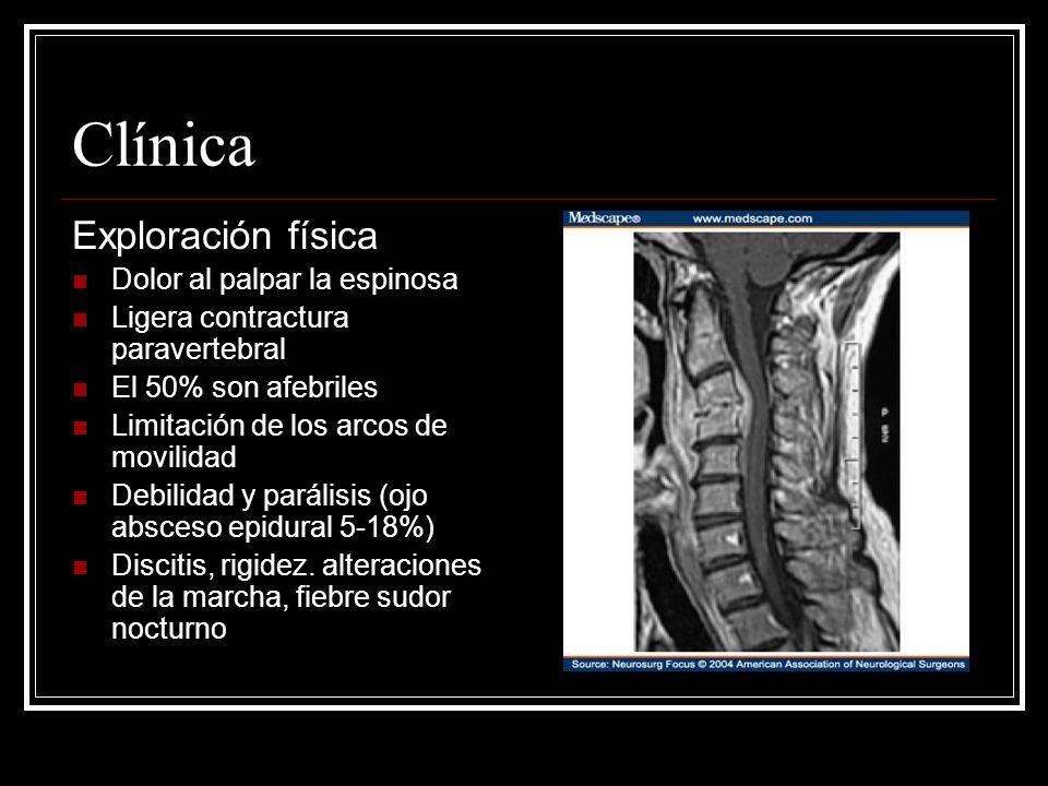Clínica Exploración física Dolor al palpar la espinosa Ligera contractura paravertebral El 50% son afebriles Limitación de los arcos de movilidad Debi