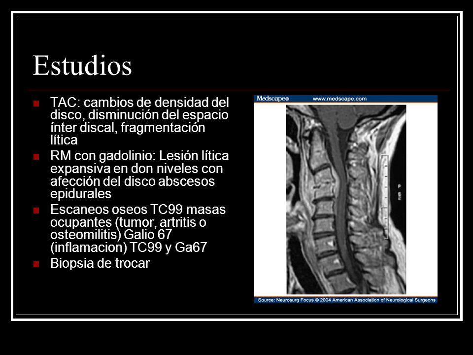 Estudios TAC: cambios de densidad del disco, disminución del espacio ínter discal, fragmentación lítica RM con gadolinio: Lesión lítica expansiva en d
