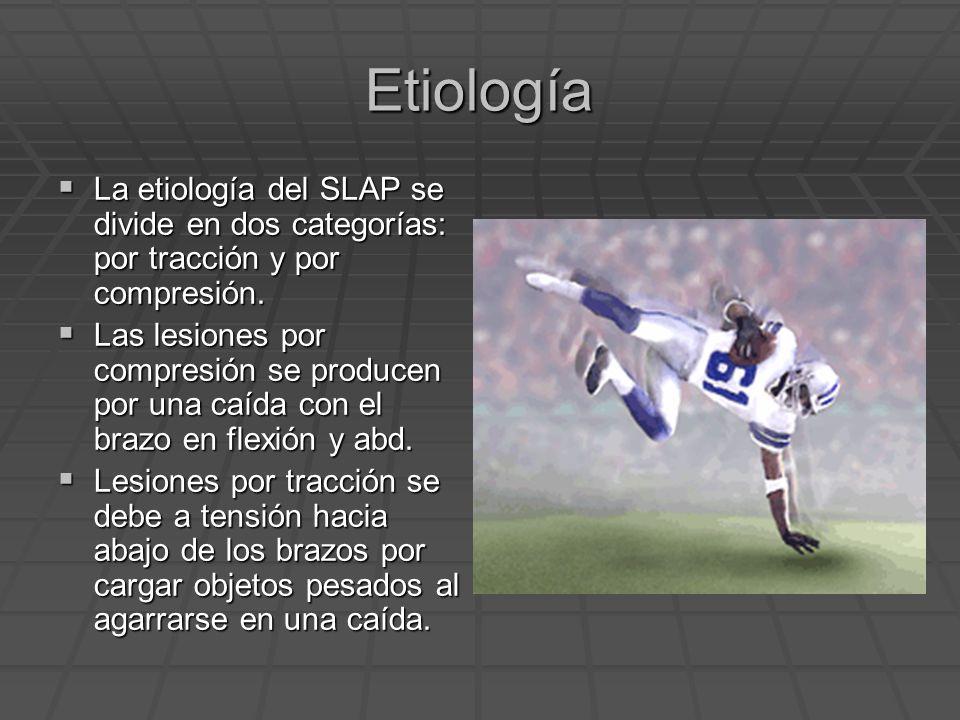 Etiología La etiología del SLAP se divide en dos categorías: por tracción y por compresión. La etiología del SLAP se divide en dos categorías: por tra