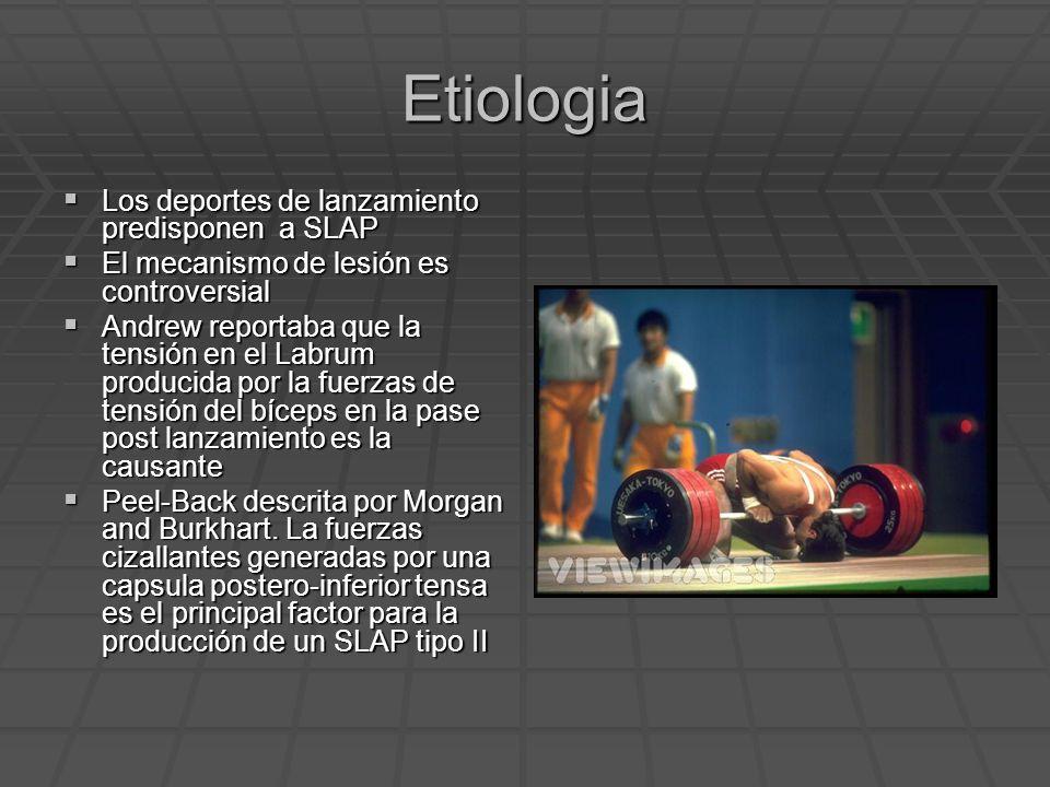 Etiologia Los deportes de lanzamiento predisponen a SLAP Los deportes de lanzamiento predisponen a SLAP El mecanismo de lesión es controversial El mec