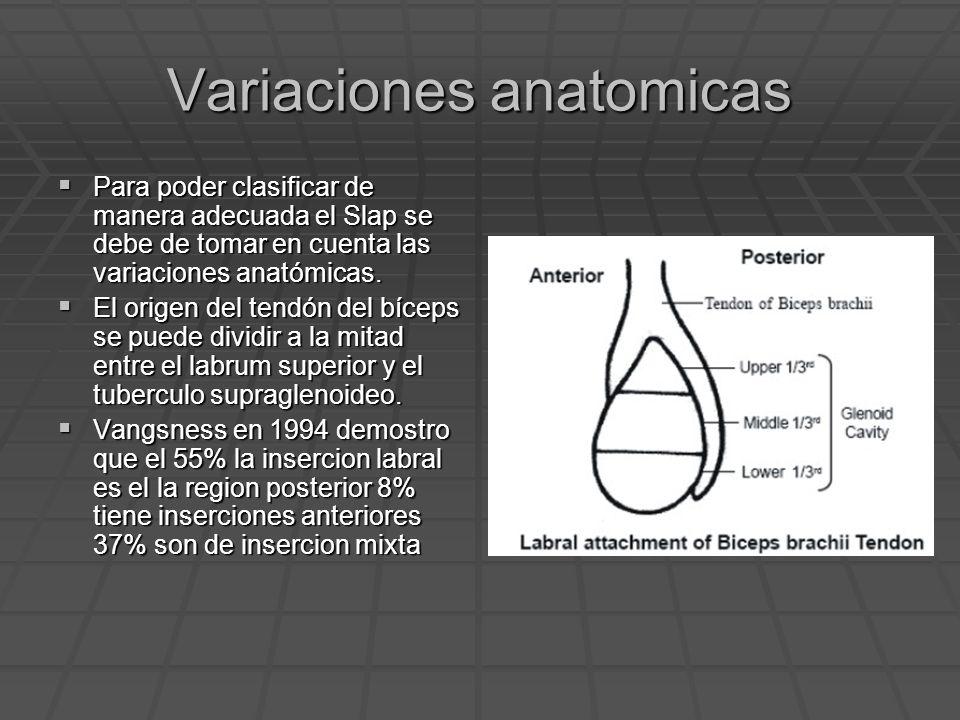 Variaciones anatomicas Para poder clasificar de manera adecuada el Slap se debe de tomar en cuenta las variaciones anatómicas. Para poder clasificar d