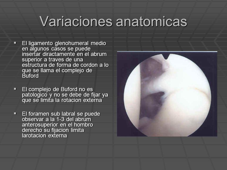 Variaciones anatomicas El ligamento glenohumeral medio en algunos casos se puede insertar diractamente en el abrum superior a traves de una estructura