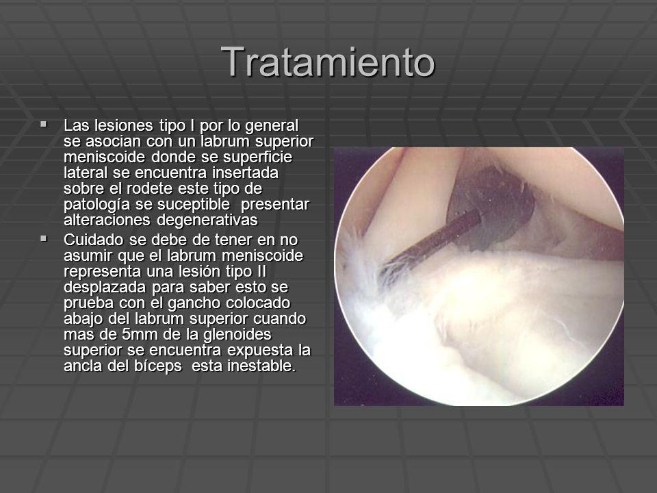 Tratamiento Las lesiones tipo I por lo general se asocian con un labrum superior meniscoide donde se superficie lateral se encuentra insertada sobre e