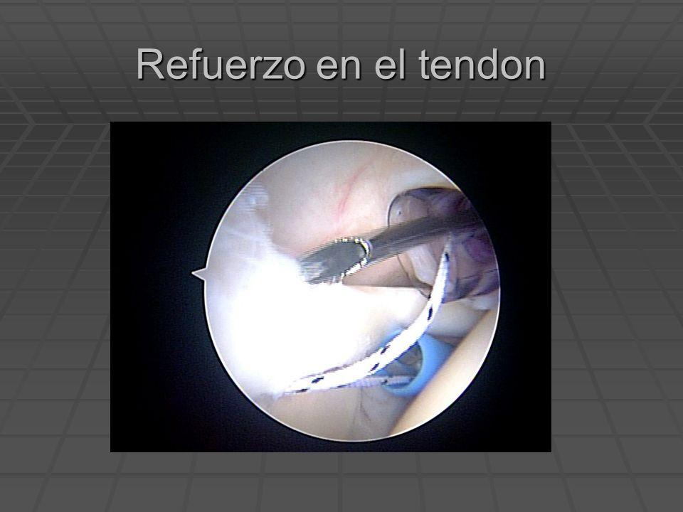Refuerzo en el tendon