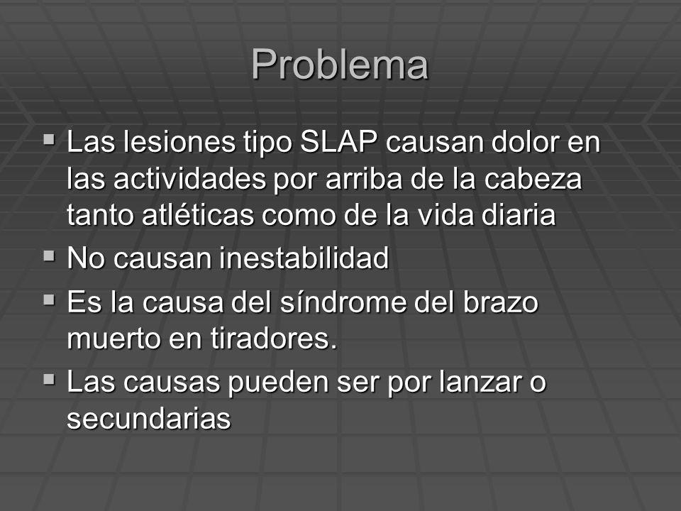 Problema Las lesiones tipo SLAP causan dolor en las actividades por arriba de la cabeza tanto atléticas como de la vida diaria Las lesiones tipo SLAP