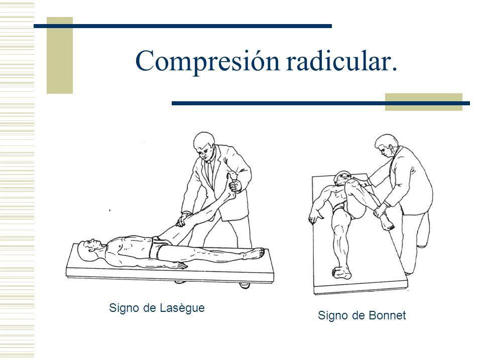 Compresión radicular. Signo de Lasègue Signo de Bonnet