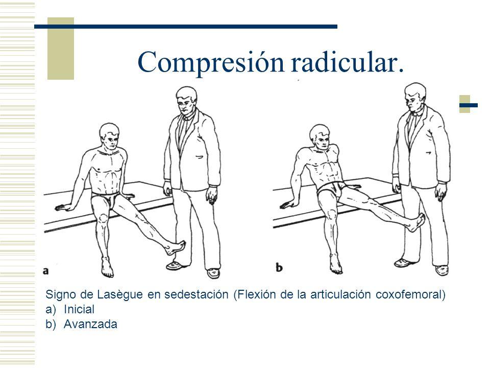 Compresión radicular. Signo de Lasègue en sedestación (Flexión de la articulación coxofemoral) a)Inicial b)Avanzada
