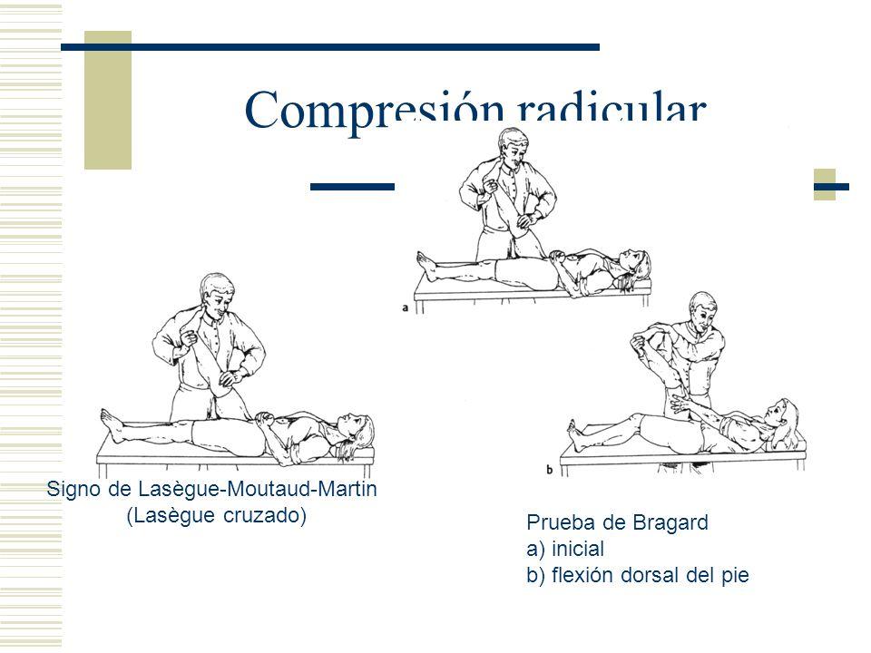 Compresión radicular. Signo de Lasègue-Moutaud-Martin (Lasègue cruzado) Prueba de Bragard a) inicial b) flexión dorsal del pie