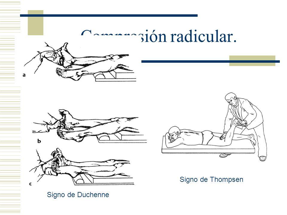 Compresión radicular. Signo de Duchenne Signo de Thompsen