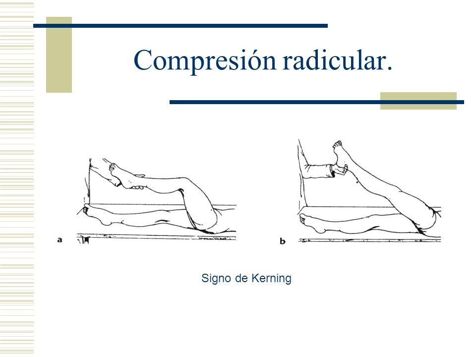 Compresión radicular. Signo de Kerning