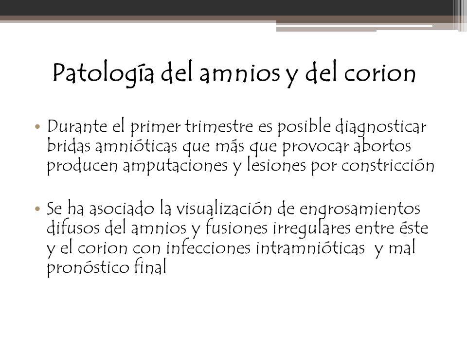 Patología del amnios y del corion Durante el primer trimestre es posible diagnosticar bridas amnióticas que más que provocar abortos producen amputaci