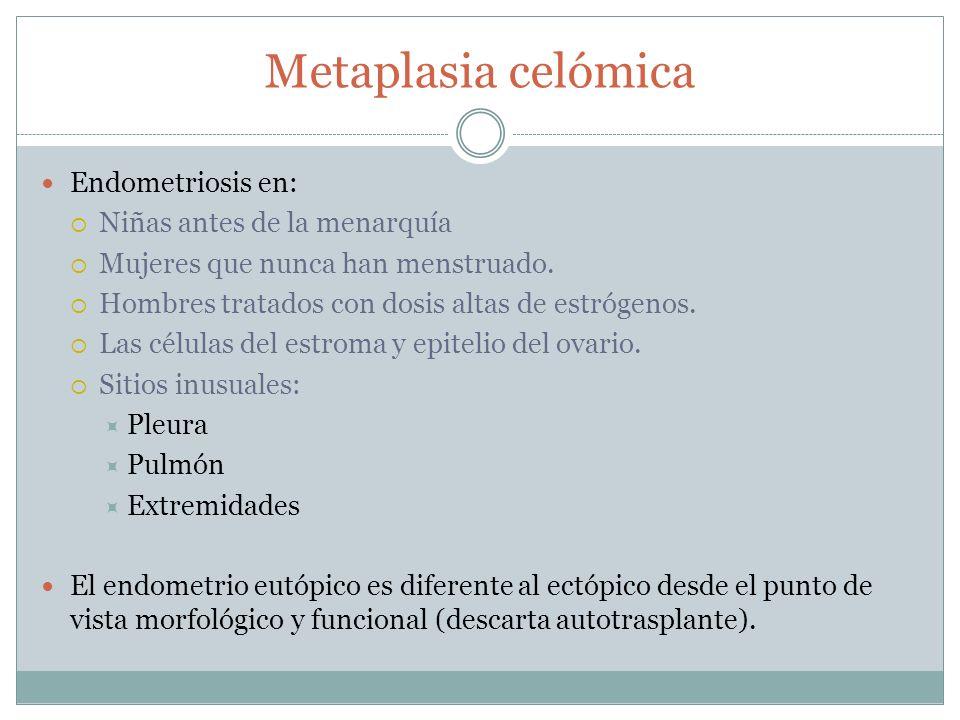 Metaplasia celómica Endometriosis en: Niñas antes de la menarquía Mujeres que nunca han menstruado. Hombres tratados con dosis altas de estrógenos. La