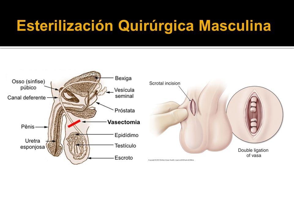 Esterilización Quirúrgica Masculina