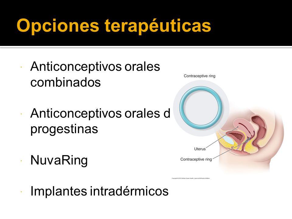 Opciones terapéuticas Anticonceptivos orales combinados Anticonceptivos orales de progestinas NuvaRing Implantes intradérmicos
