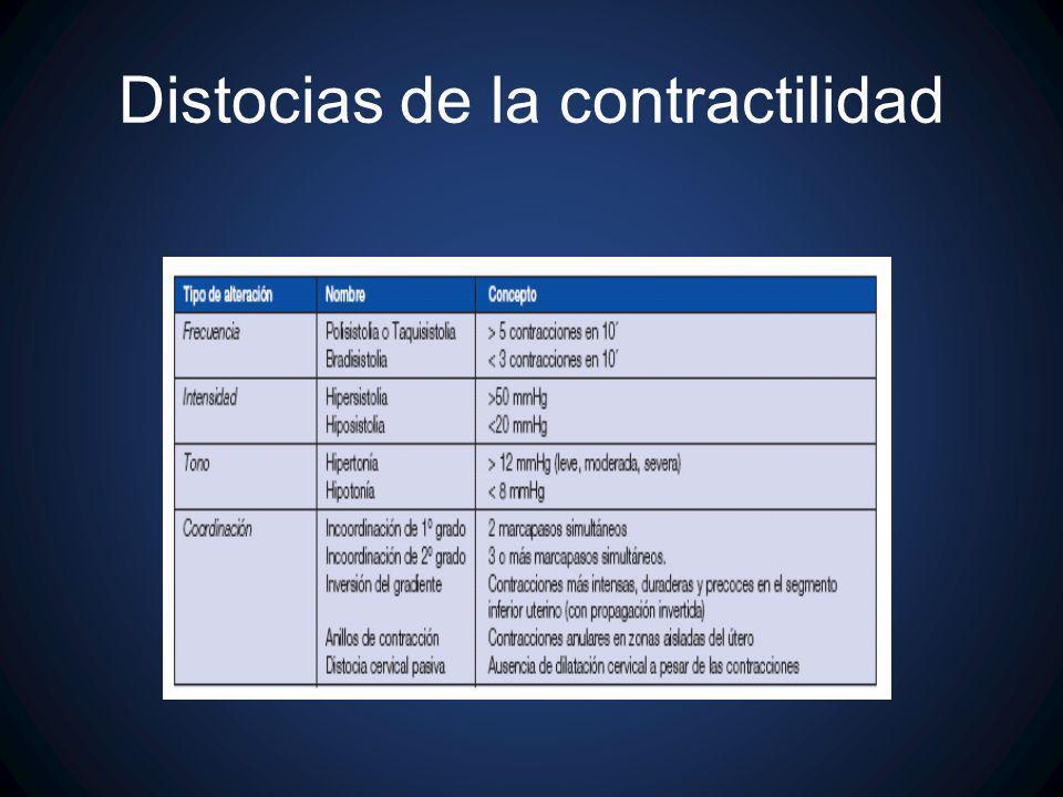 Distocias de la contractilidad