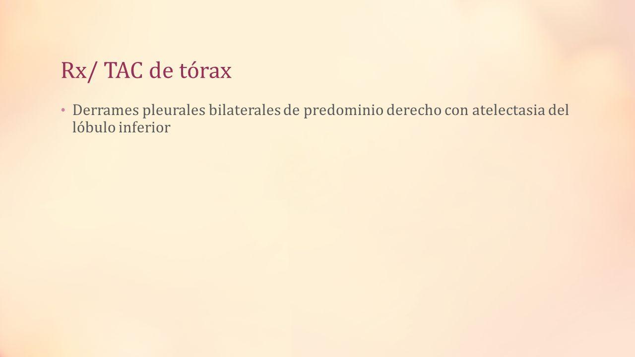 Rx/ TAC de tórax Derrames pleurales bilaterales de predominio derecho con atelectasia del lóbulo inferior