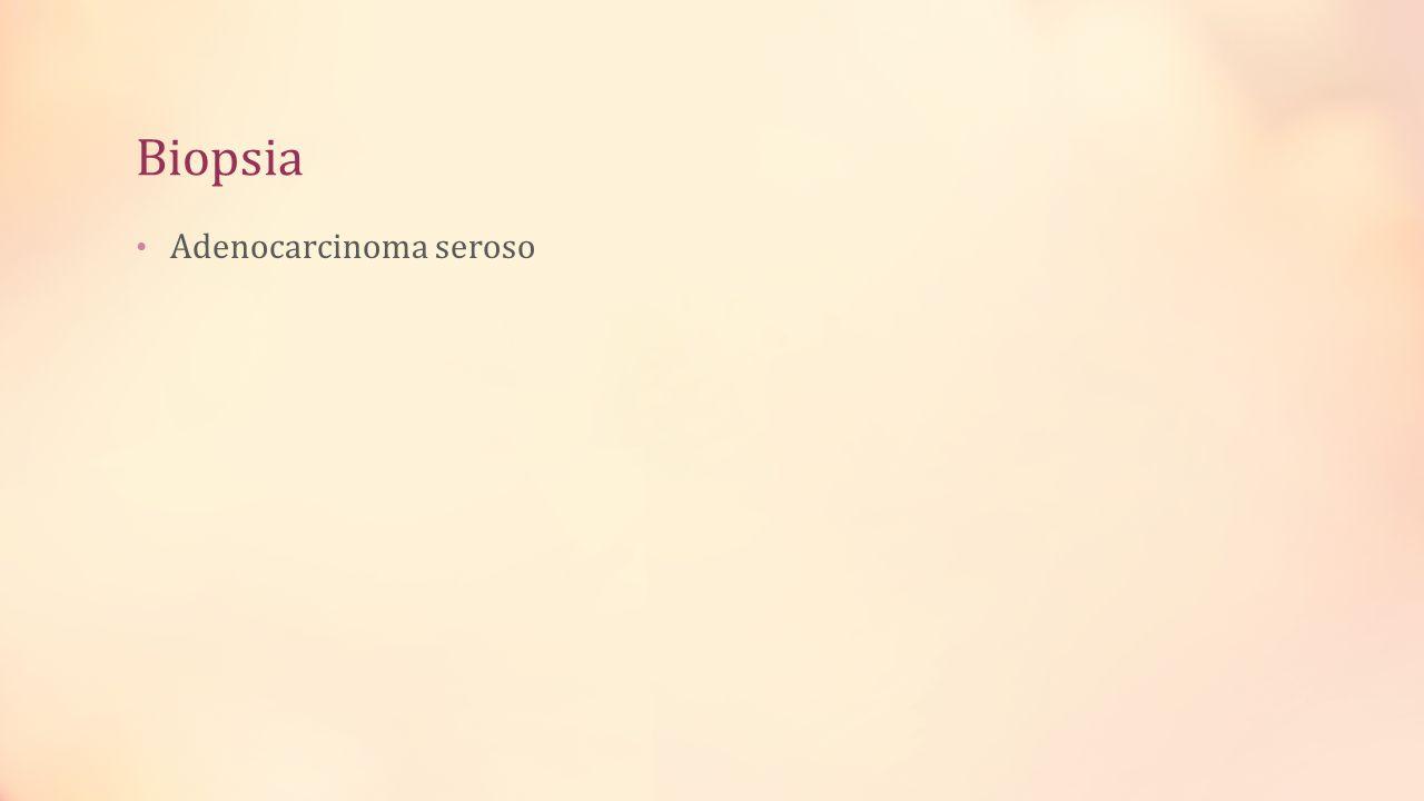 Biopsia Adenocarcinoma seroso