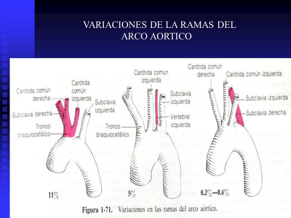 VARIACIONES DE LA RAMAS DEL ARCO AORTICO