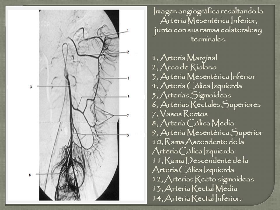 Imagen angiográfica resaltando la Arteria Mesentérica Inferior, junto con sus ramas colaterales y terminales. 1, Arteria Marginal 2, Arco de Riolano 3