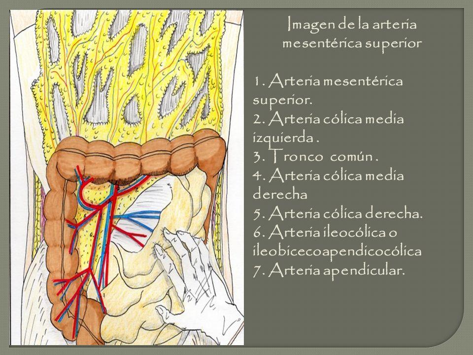 Imagen de la arteria mesentérica superior 1. Arteria mesentérica superior. 2. Arteria cólica media izquierda. 3. Tronco común. 4. Arteria cólica media